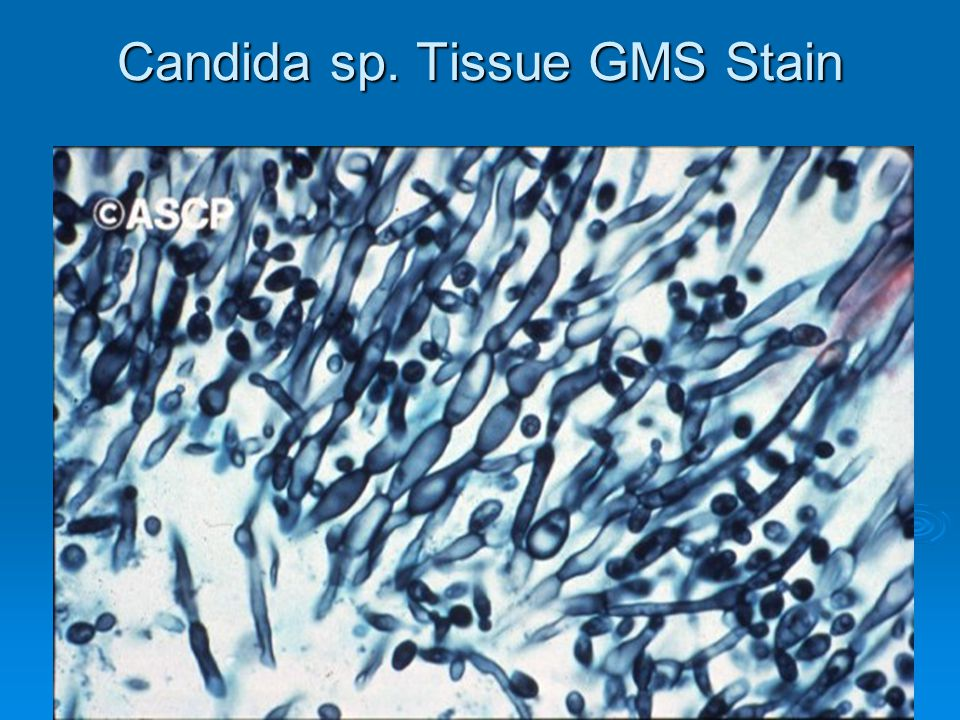 32 Candida sp. Tissue GMS Stain