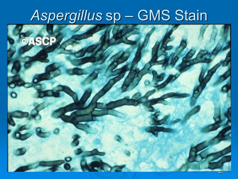 37 Aspergillus sp – GMS Stain