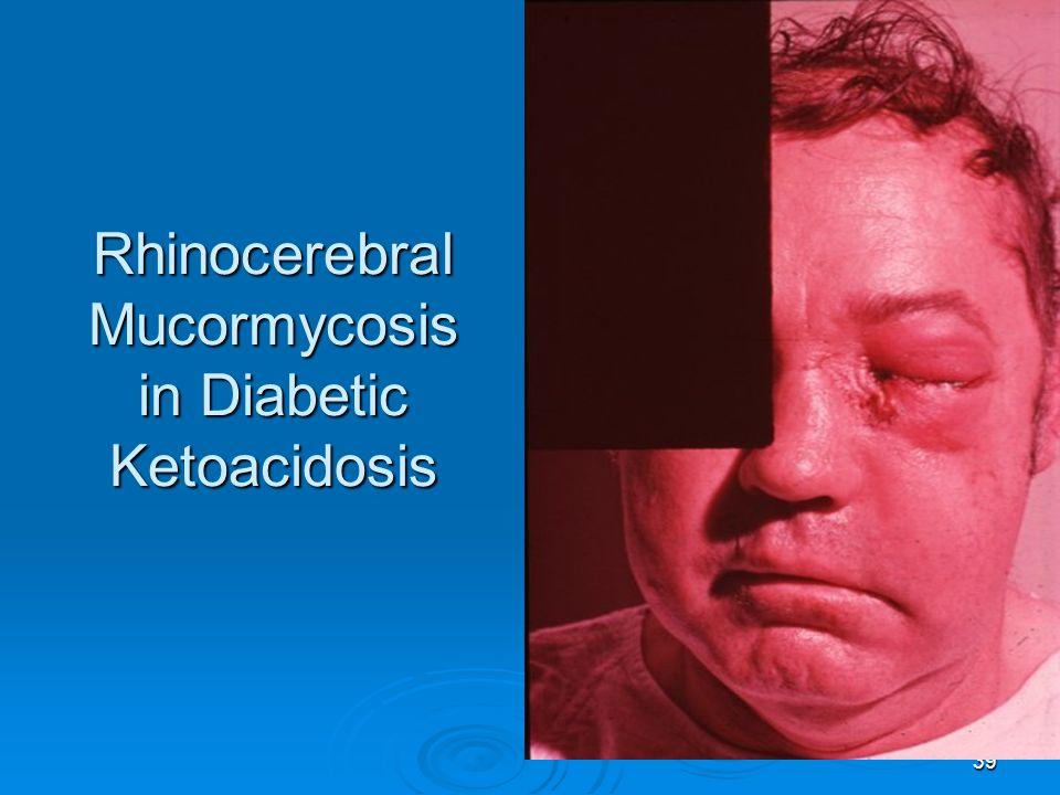 39 Rhinocerebral Mucormycosis in Diabetic Ketoacidosis