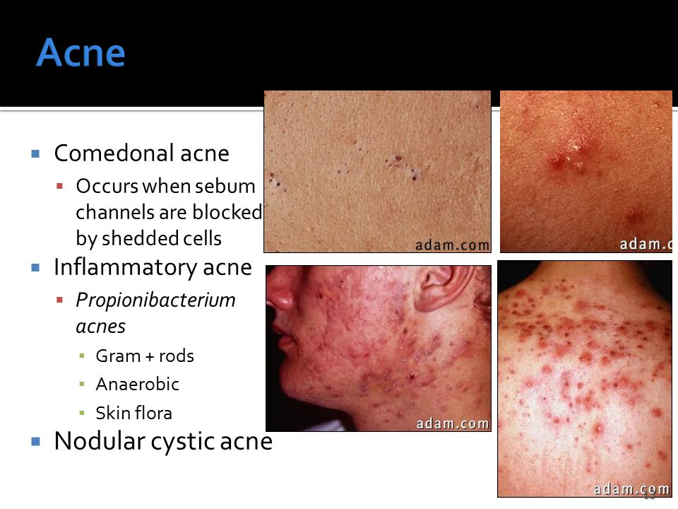  Comedonal acne  Occurs when sebum channels are blocked by shedded cells  Inflammatory acne  Propionibacterium acnes ▪ Gram + rods ▪ Anaerobic ▪ Skin flora  Nodular cystic acne 13