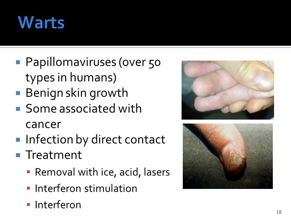  Papillomaviruses (over 50 types in humans)  Benign skin growth  Some associated with cancer  Infection by direct contact  Treatment  Removal wi