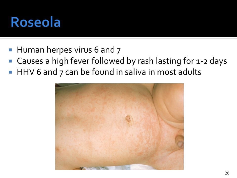  Human herpes virus 6 and 7  Causes a high fever followed by rash lasting for 1-2 days  HHV 6 and 7 can be found in saliva in most adults 26