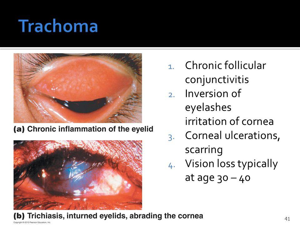 1. Chronic follicular conjunctivitis 2. Inversion of eyelashes irritation of cornea 3.
