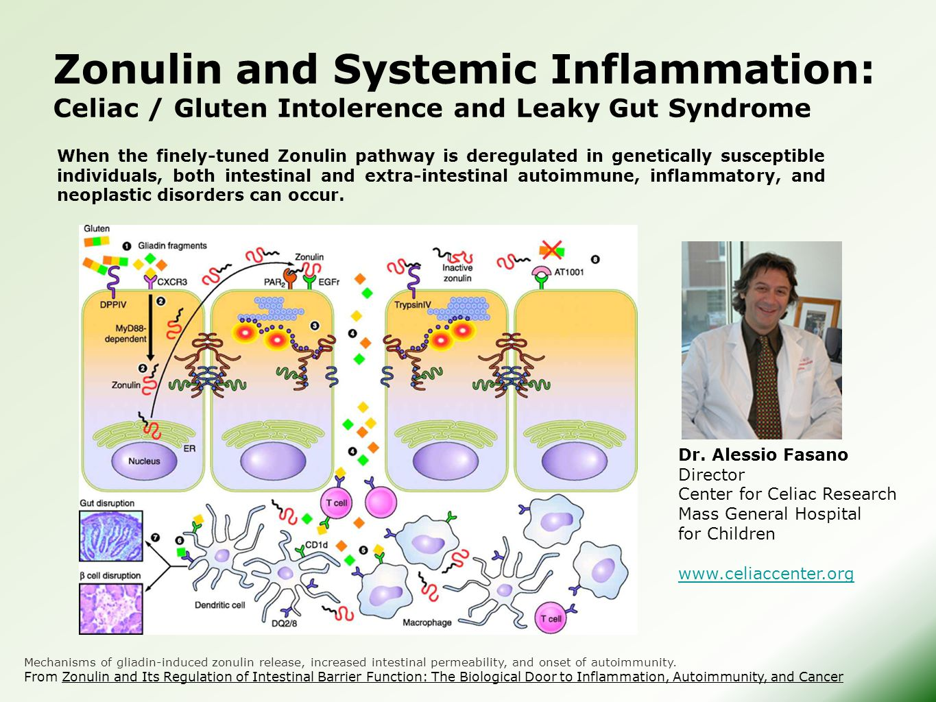 Zonulin and Systemic Inflammation: Celiac / Gluten Intolerence and Leaky Gut Syndrome When the finely-tuned Zonulin pathway is deregulated in genetica