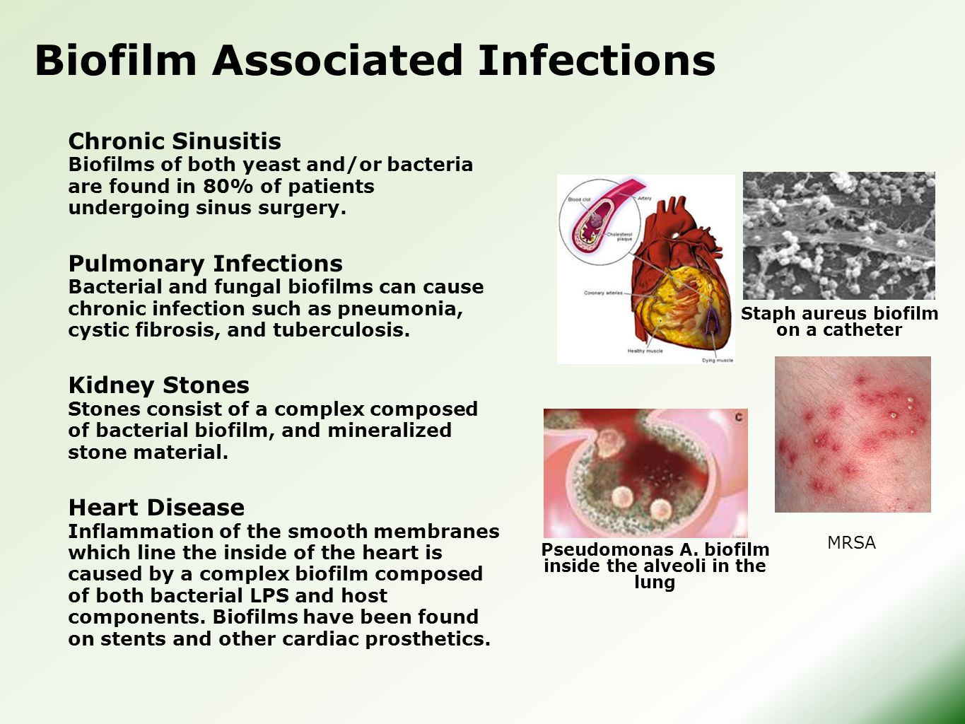 Chronic Sinusitis Biofilms of both yeast and/or bacteria are found in 80% of patients undergoing sinus surgery. Pulmonary Infections Bacterial and fun