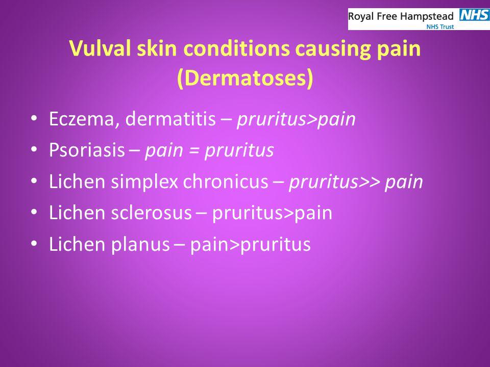 Vulval skin conditions causing pain (Dermatoses) Eczema, dermatitis – pruritus>pain Psoriasis – pain = pruritus Lichen simplex chronicus – pruritus>> pain Lichen sclerosus – pruritus>pain Lichen planus – pain>pruritus