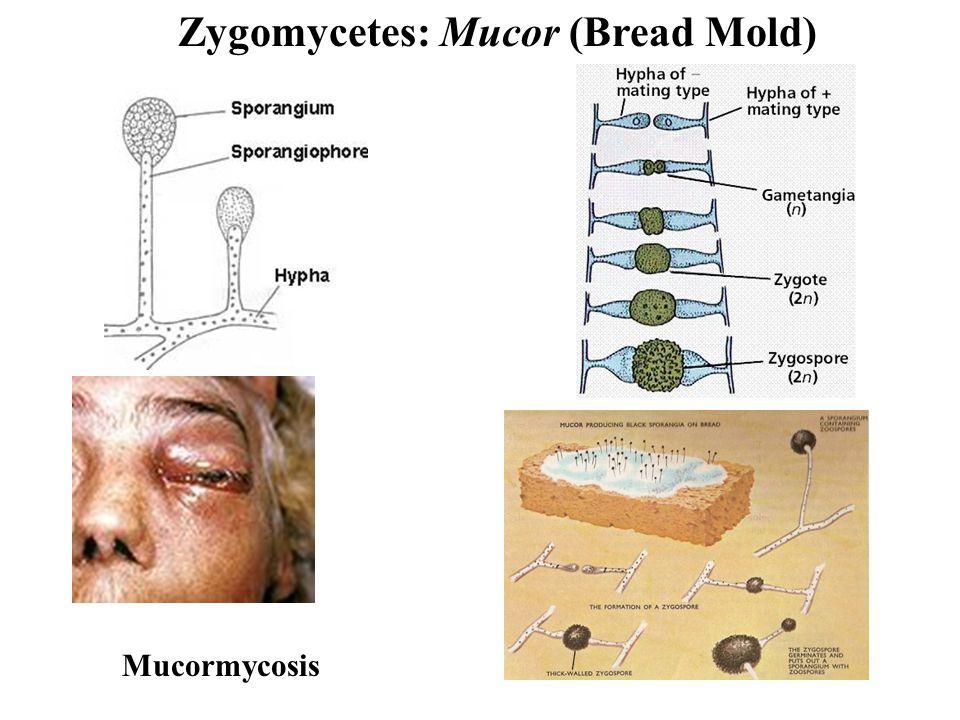 Zygomycetes: Mucor (Bread Mold) Mucormycosis