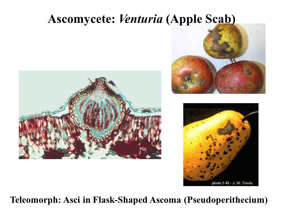 Ascomycete: Venturia (Apple Scab) Teleomorph: Asci in Flask-Shaped Ascoma (Pseudoperithecium)