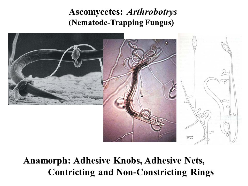 Ascomycetes: Arthrobotrys (Nematode-Trapping Fungus) Anamorph: Adhesive Knobs, Adhesive Nets, Contricting and Non-Constricting Rings