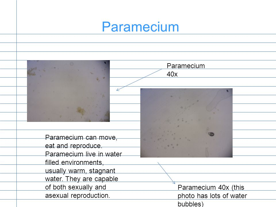 Paramecium Paramecium 40x Paramecium 40x (this photo has lots of water bubbles) Paramecium can move, eat and reproduce.