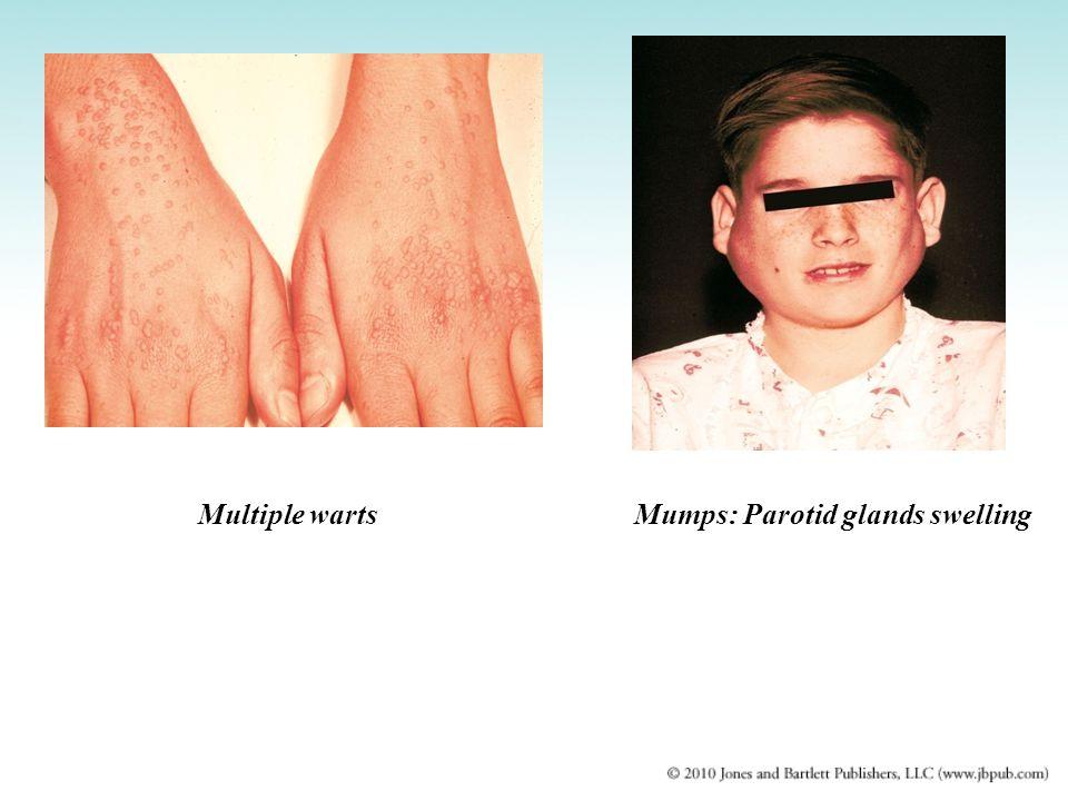 Mumps: Parotid glands swellingMultiple warts