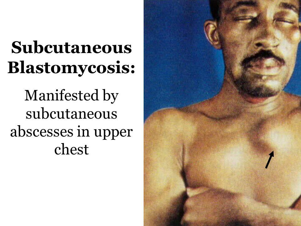 Cutaneous Blastomycosis: Hand & Wrist