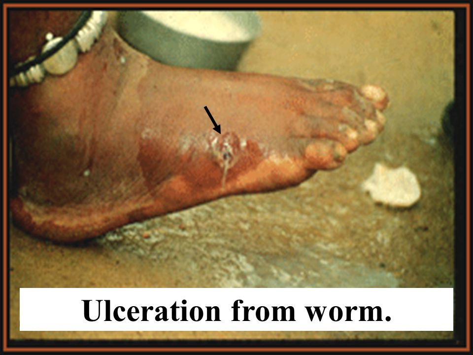Dracunculiasis (Fiery Dragon Worm) Found just under skin of human host. Causes blisters at site of infestation.