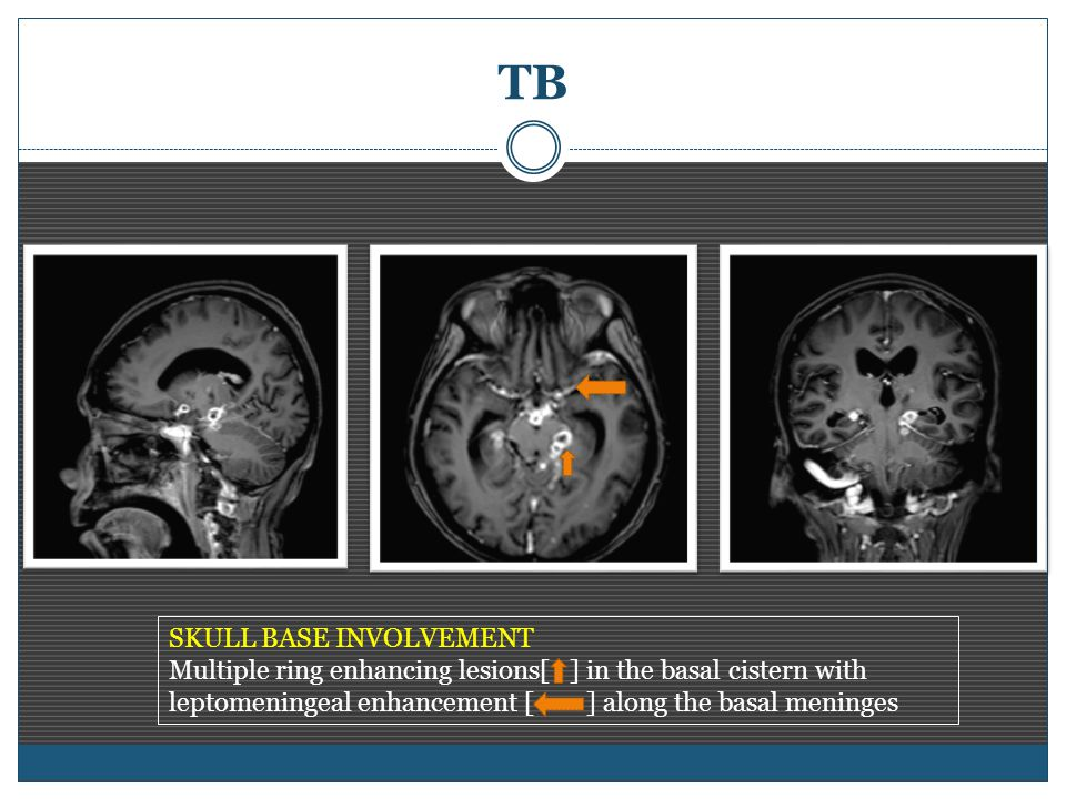 TB SKULL BASE INVOLVEMENT Multiple ring enhancing lesions[ ] in the basal cistern with leptomeningeal enhancement [ ] along the basal meninges