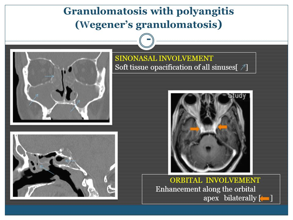 Granulomatosis with polyangitis ( W egener's granulomatosis ) - SINONASAL INVOLVEMENT Soft tissue opacification of all sinuses[ ] ORBITAL INVOLVEMENT Enhancement along the orbital apex bilaterally [ ]