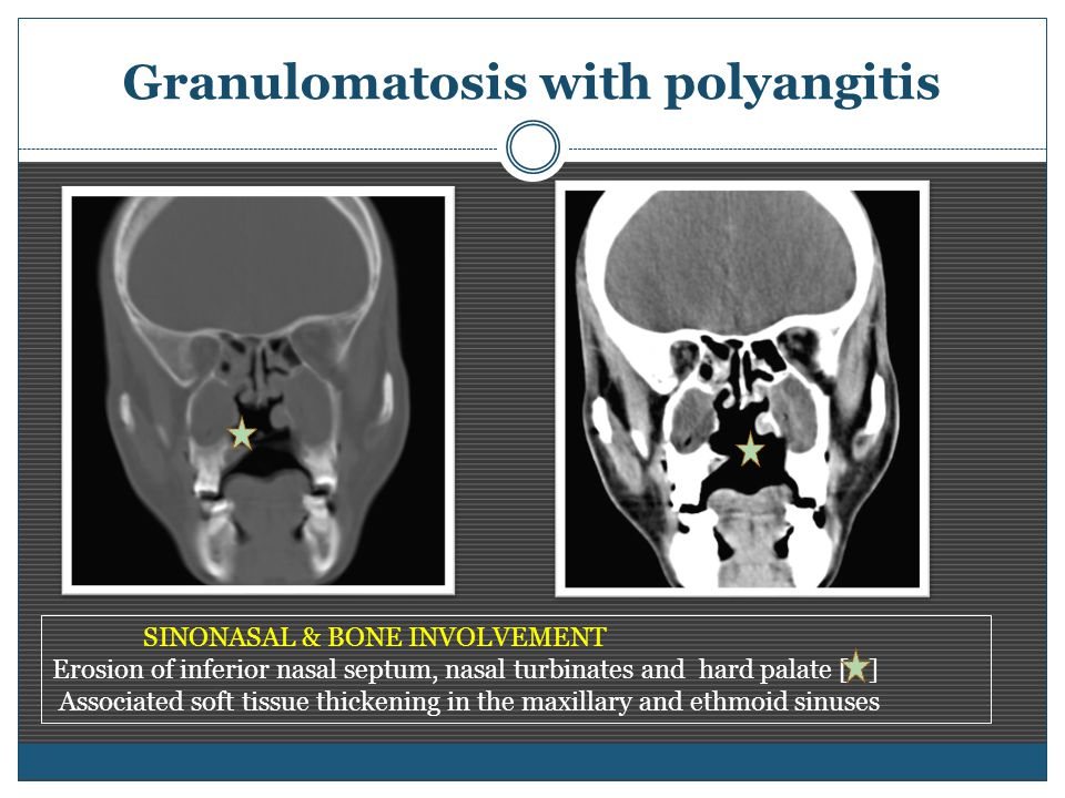 Granulomatosis with polyangitis SINONASAL & BONE INVOLVEMENT Erosion of inferior nasal septum, nasal turbinates and hard palate [ ] Associated soft tissue thickening in the maxillary and ethmoid sinuses