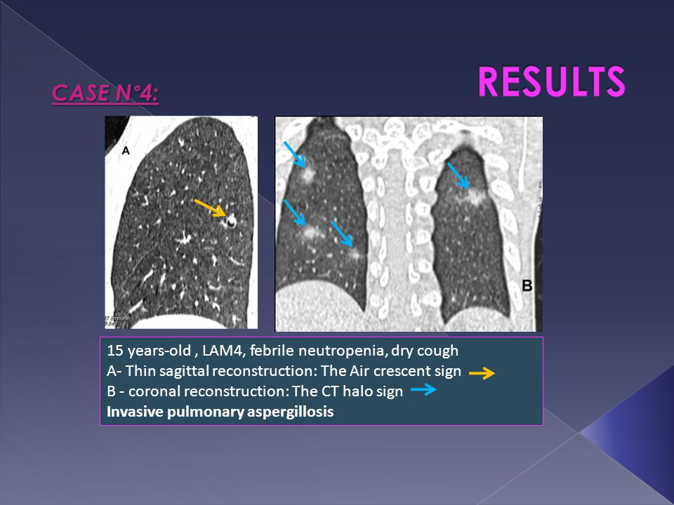 15 years-old, LAM4, febrile neutropenia, dry cough A- Thin sagittal reconstruction: The Air crescent sign B - coronal reconstruction: The CT halo sign Invasive pulmonary aspergillosis
