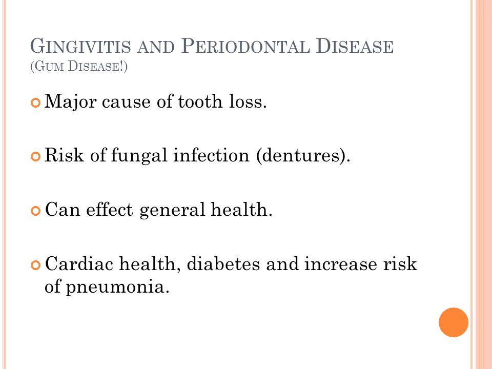 G INGIVITIS AND P ERIODONTAL D ISEASE (G UM D ISEASE !) Major cause of tooth loss.