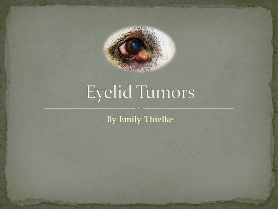 By Emily Thielke