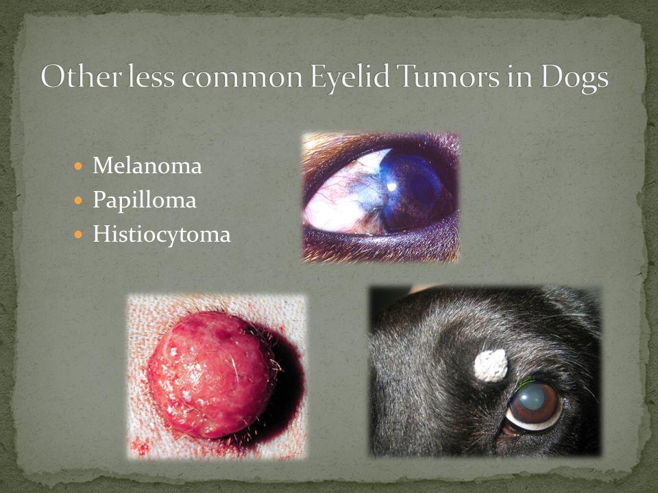Melanoma Papilloma Histiocytoma