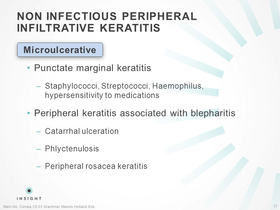 NON INFECTIOUS PERIPHERAL INFILTRATIVE KERATITIS 17 Stern GA.
