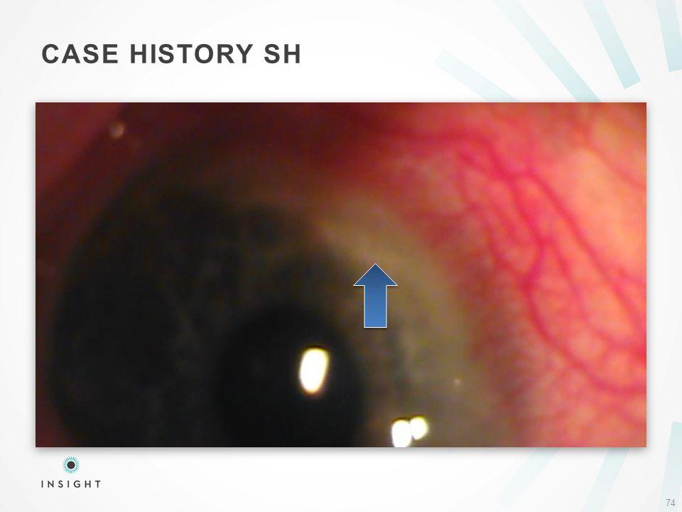 CASE HISTORY SH 74