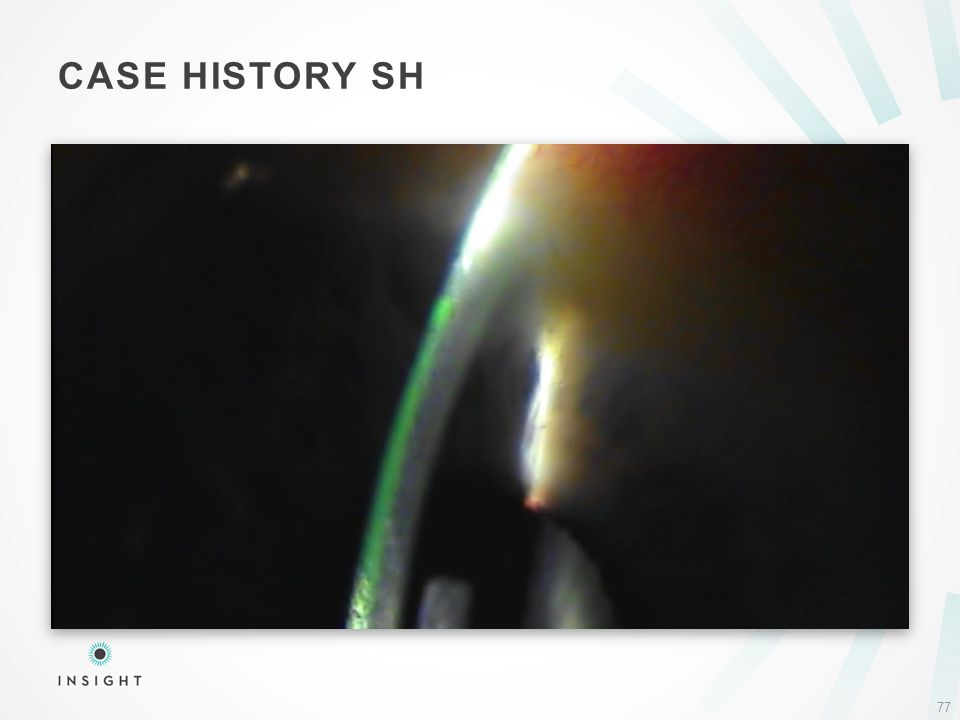 CASE HISTORY SH 77