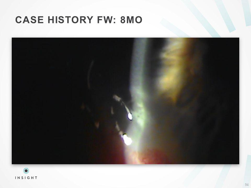 CASE HISTORY FW: 8MO 94