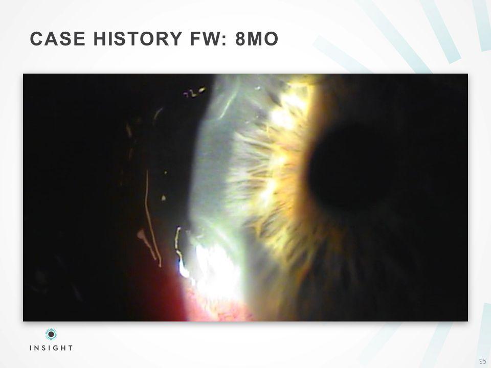 CASE HISTORY FW: 8MO 95