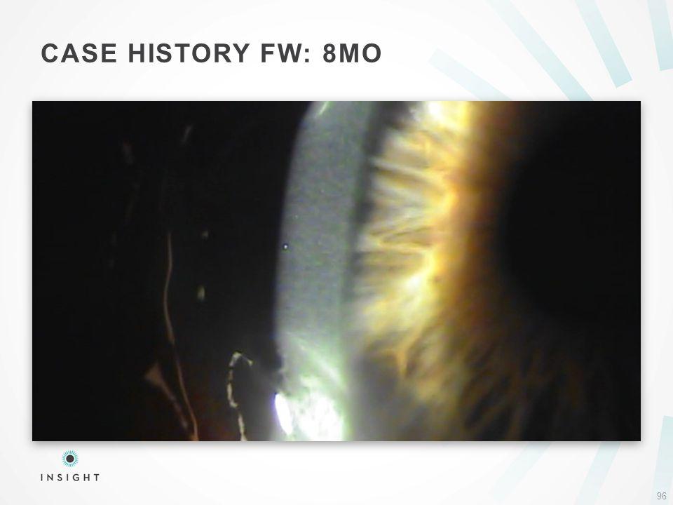 CASE HISTORY FW: 8MO 96