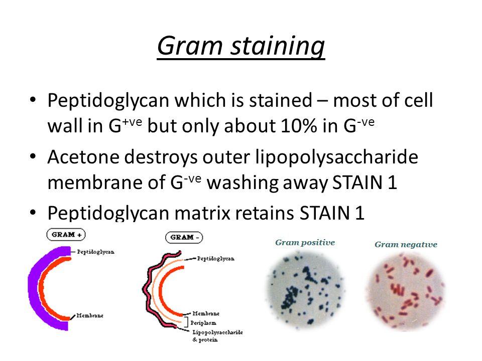 A little bit of detail...Vibrio cholerae (Genus species or G.