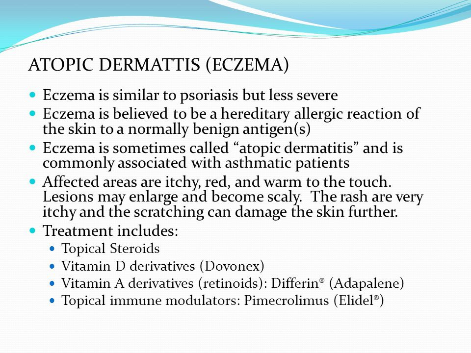 Eczema is similar to psoriasis but less severe Eczema is believed to be a hereditary allergic reaction of the skin to a normally benign antigen(s) Eczema is sometimes called atopic dermatitis and is commonly associated with asthmatic patients Affected areas are itchy, red, and warm to the touch.