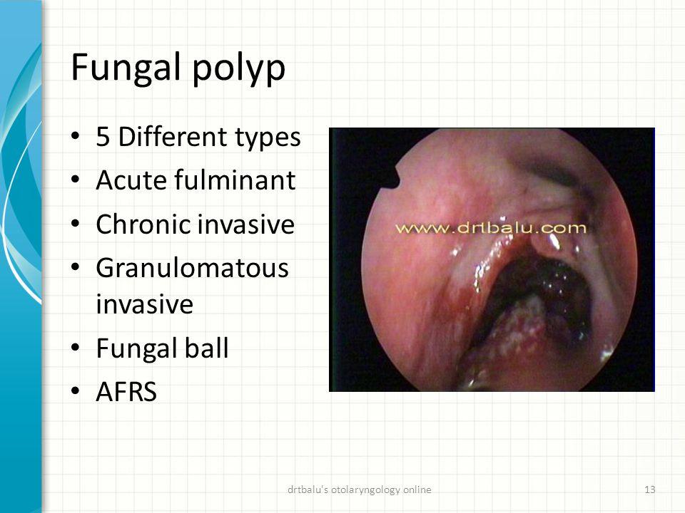 Fungal polyp 5 Different types Acute fulminant Chronic invasive Granulomatous invasive Fungal ball AFRS drtbalu's otolaryngology online13