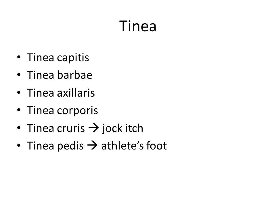 Tinea Tinea capitis Tinea barbae Tinea axillaris Tinea corporis Tinea cruris  jock itch Tinea pedis  athlete's foot