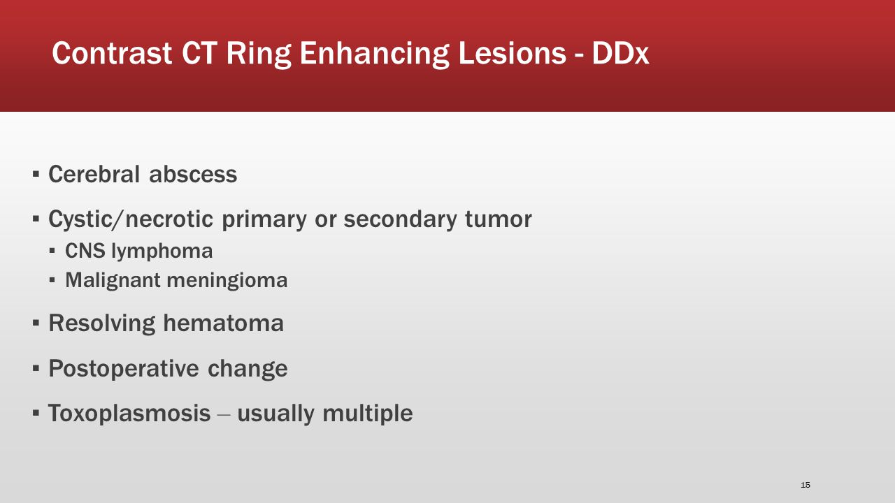 Contrast CT Ring Enhancing Lesions - DDx ▪ Cerebral abscess ▪ Cystic/necrotic primary or secondary tumor ▪ CNS lymphoma ▪ Malignant meningioma ▪ Resolving hematoma ▪ Postoperative change ▪ Toxoplasmosis – usually multiple 15