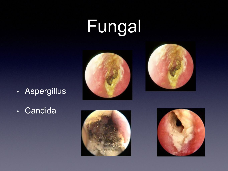 Fungal Aspergillus Candida