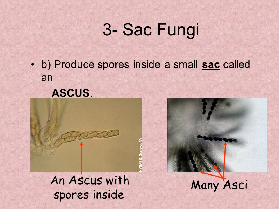 3- Sac Fungi b) Produce spores inside a small sac called an ASCUS.