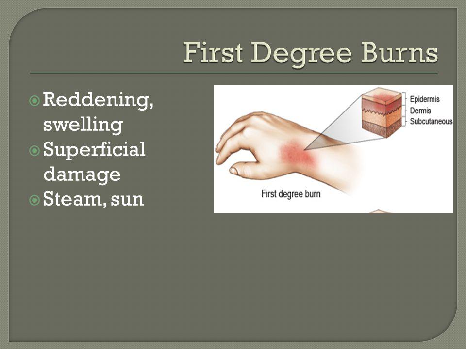  Reddening, swelling  Superficial damage  Steam, sun