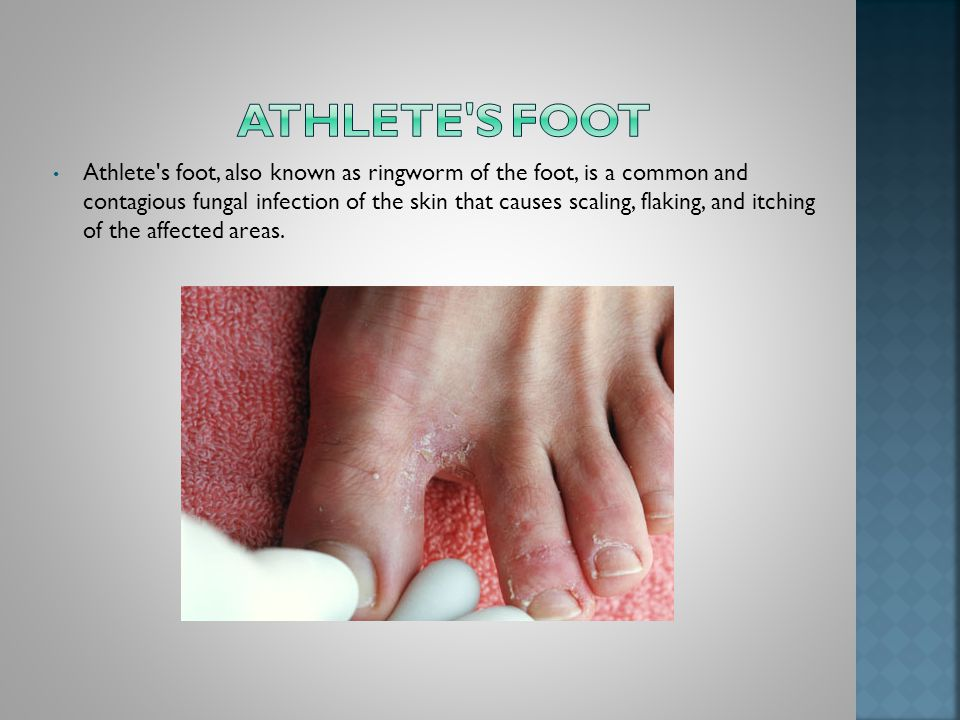 Athlete s foot, also known as ringworm of the foot, is a common and contagious fungal infection of the skin that causes scaling, flaking, and itching of the affected areas.