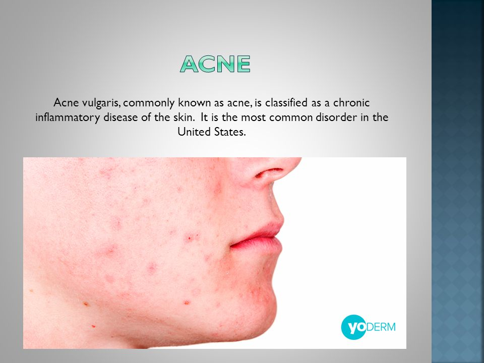 Acne vulgaris, commonly known as acne, is classified as a chronic inflammatory disease of the skin.