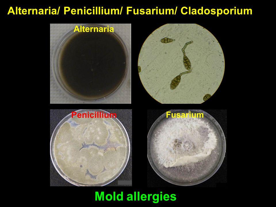 Alternaria/ Penicillium/ Fusarium/ Cladosporium Mold allergies