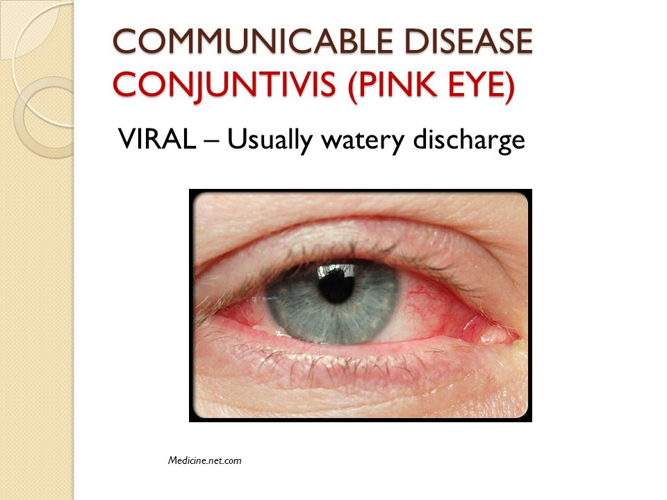 COMMUNICABLE DISEASE CONJUNTIVIS (PINK EYE) VIRAL – Usually watery discharge Medicine.net.com