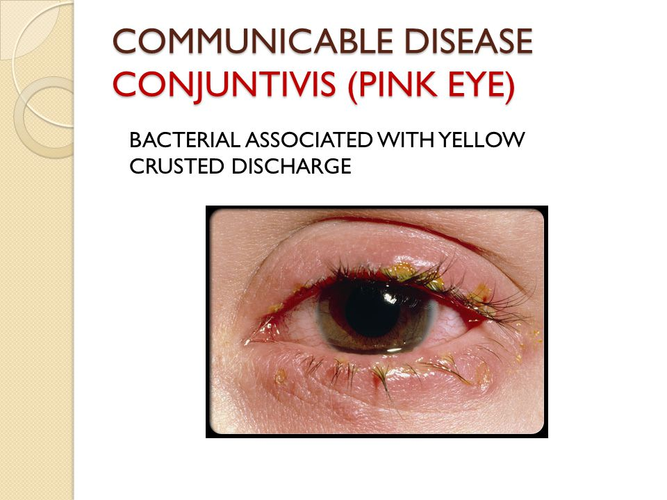 COMMUNICABLE DISEASE CONJUNTIVIS (PINK EYE) BACTERIAL ASSOCIATED WITH YELLOW CRUSTED DISCHARGE