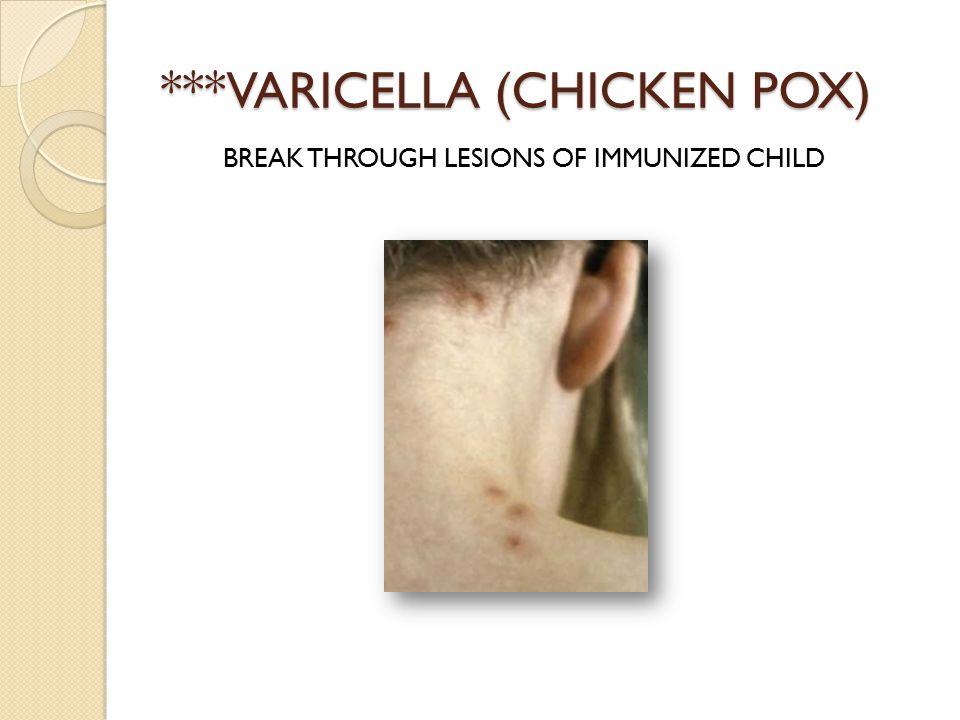 ***VARICELLA (CHICKEN POX) BREAK THROUGH LESIONS OF IMMUNIZED CHILD