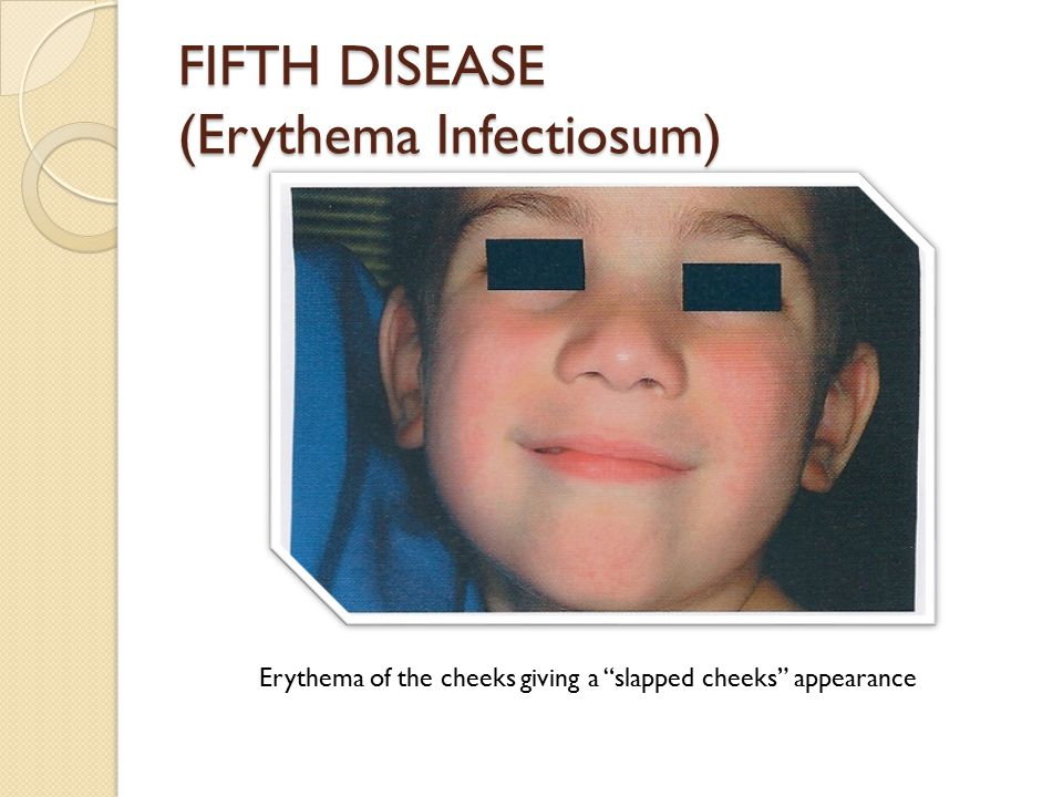 """FIFTH DISEASE (Erythema Infectiosum) Erythema of the cheeks giving a """"slapped cheeks"""" appearance"""