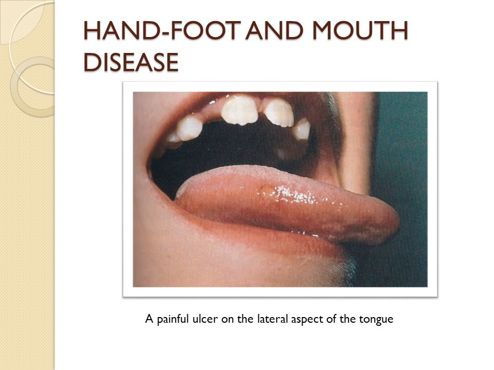 HAND-FOOT AND MOUTH DISEASE A painful ulcer on the lateral aspect of the tongue