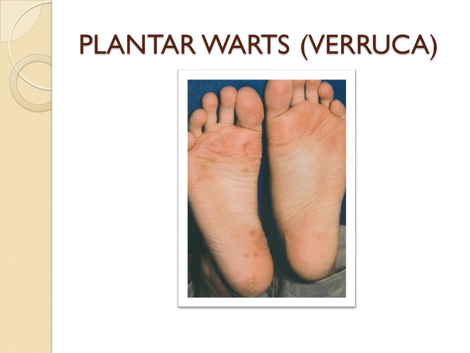 PLANTAR WARTS (VERRUCA)