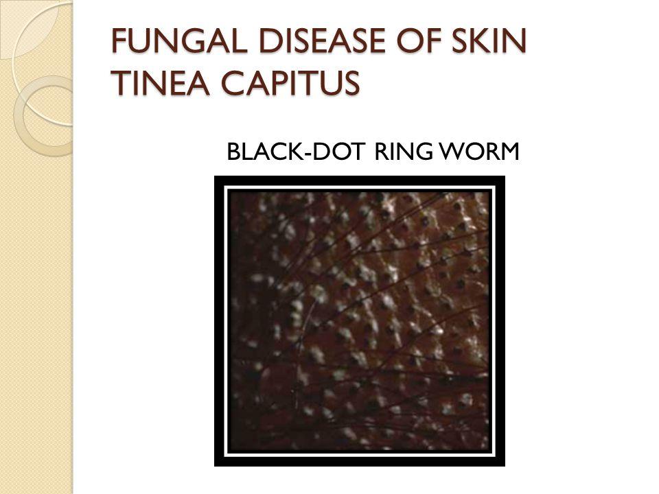 FUNGAL DISEASE OF SKIN TINEA CAPITUS BLACK-DOT RING WORM