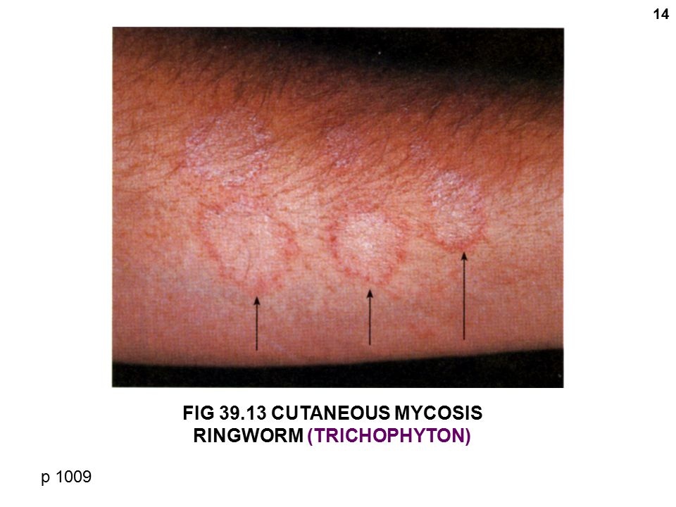 14 FIG 39.13 CUTANEOUS MYCOSIS RINGWORM (TRICHOPHYTON) p 1009