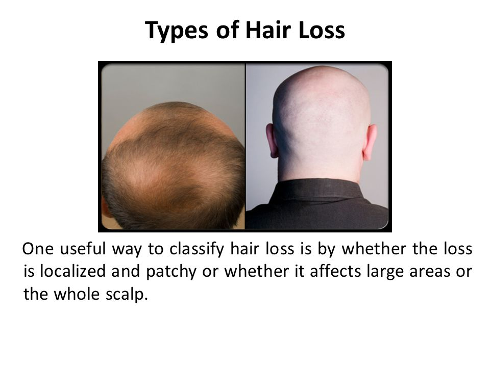 Types of Hair Loss One useful way to classify hair loss is by whether the loss is localized and patchy or whether it affects large areas or the whole